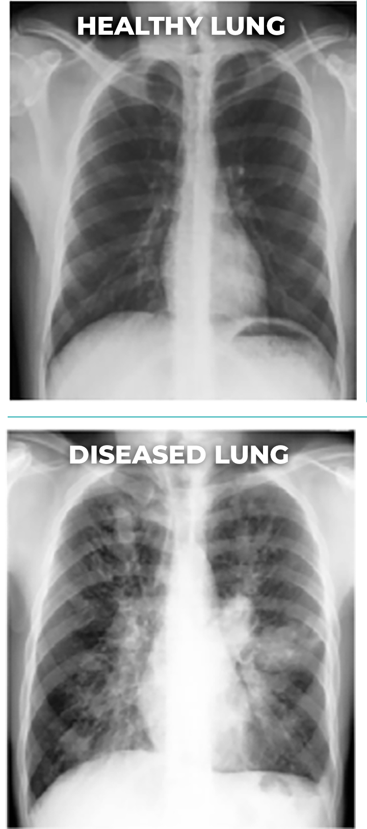 ABPA Lung